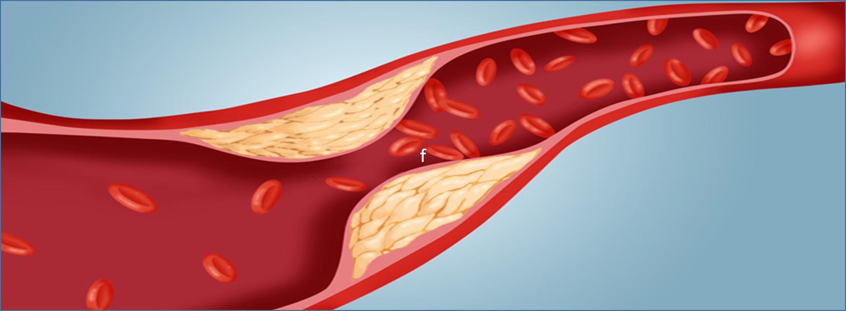 Kolestaroolka (Cholesterol)